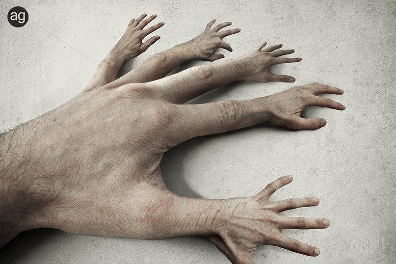 человек у которого нет не рук не ног в картинках спектр